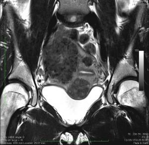 fibroids-.0001-300x293