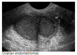 ovarian-endometriomas