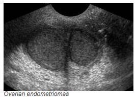 ovarian-endometriomas